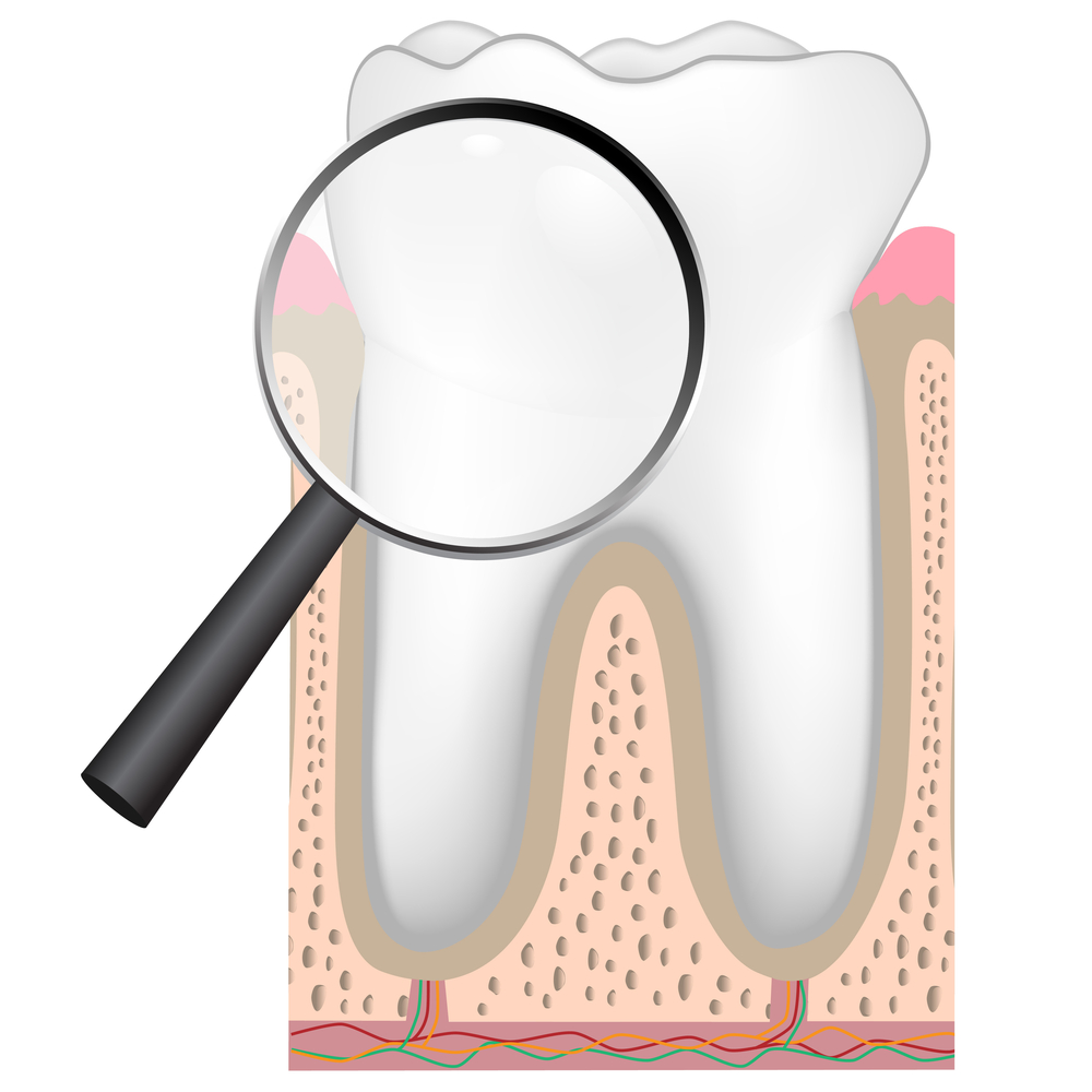 Des Moines Dentist Presentsthe Human Tooth Crown And Root Des
